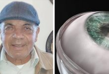 Photo of World's First Artificial Cornea Transplant, 78-year-old Blind Man Regains Sight