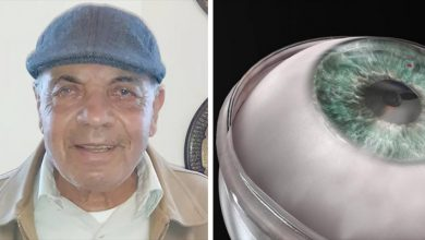 Photo of World's First Artificial Cornea Transplant: 78-year-old Blind Man Regains Sight.